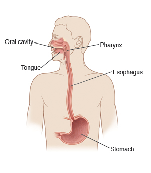 Esophageal Cancer: Symptoms, Causes, Risk Factors and Treatments