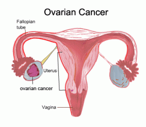 Ovarian Cancer: Symptoms, Causes, Risk Factors and Treatments