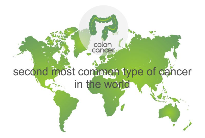 Colon Cancer – The Second Most Common Type of Cancer