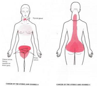 Ovarian Cancer Treatment Budwig Center Natural Treatments