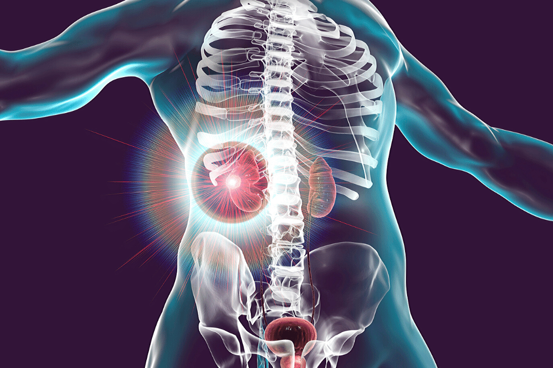 Kidney Cancer Symptoms Causes Risk Factors And Treatments